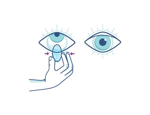 Kläm försiktigt ihop linsen för att ta ut kontaktlinsen