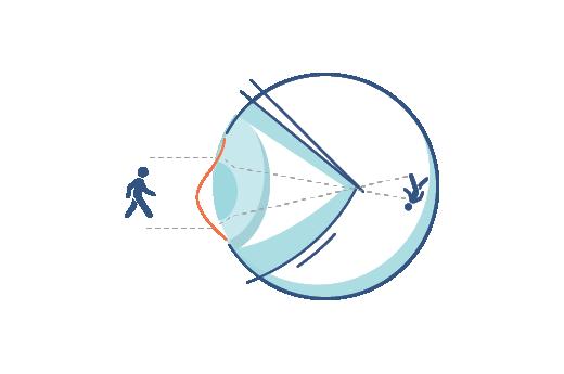 Illustration av ett öga med brytningsfel (astigmatism)