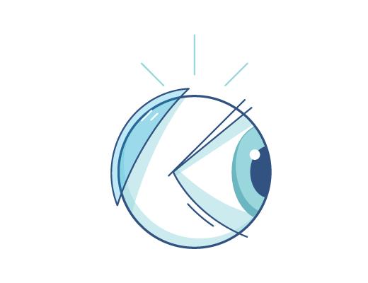 Illustration av en kontaklins bakom ett öga