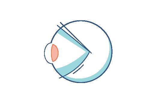 Illustration av ett öga med presbyopi