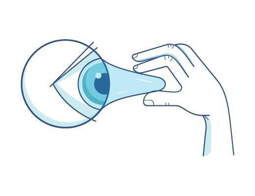 Att dra ut linser ur ögat