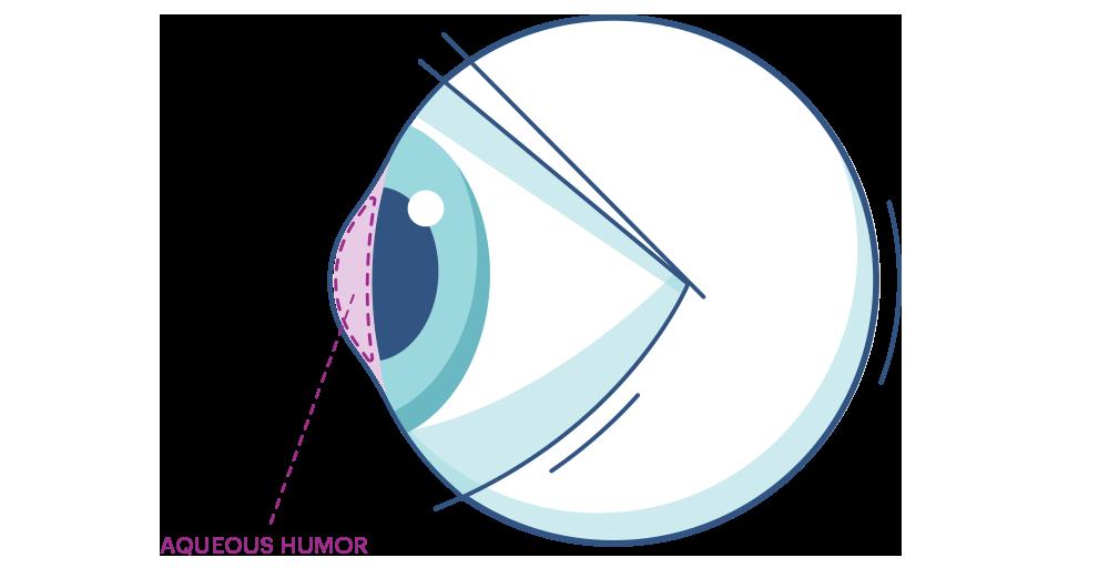 Illustration av ett öga som markerar kammarvattnet