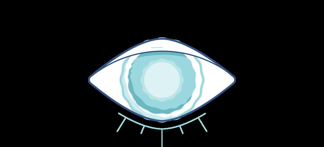 Illustration av ett grumligt öga med grå starr