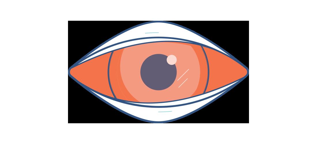 Illustration av ett ömt, rött öga med blindhinnekatarr