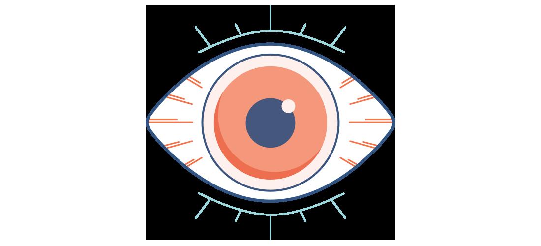 Illustration av ett torrt, rött och ont öga