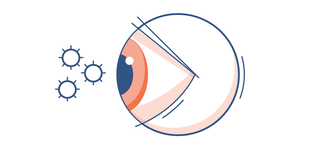 Illustration av ett rött öga med pollenpartiklar i luften runtomkring