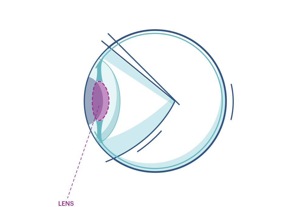 Illustration av ett öga som markerar ögonlinsen