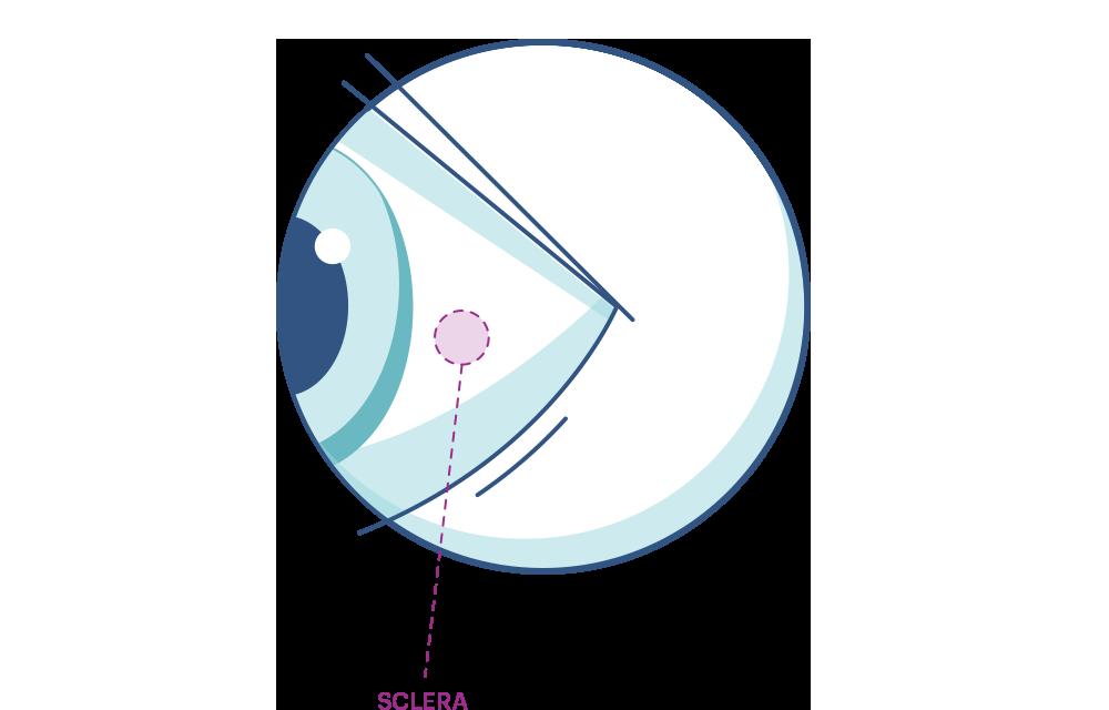 Illustration av ett öga som markerar senhinnan