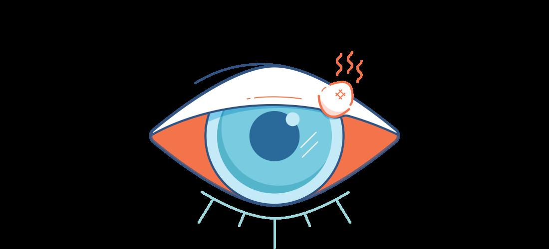 Illustration av ett ömt öga med en röd, ond vagel